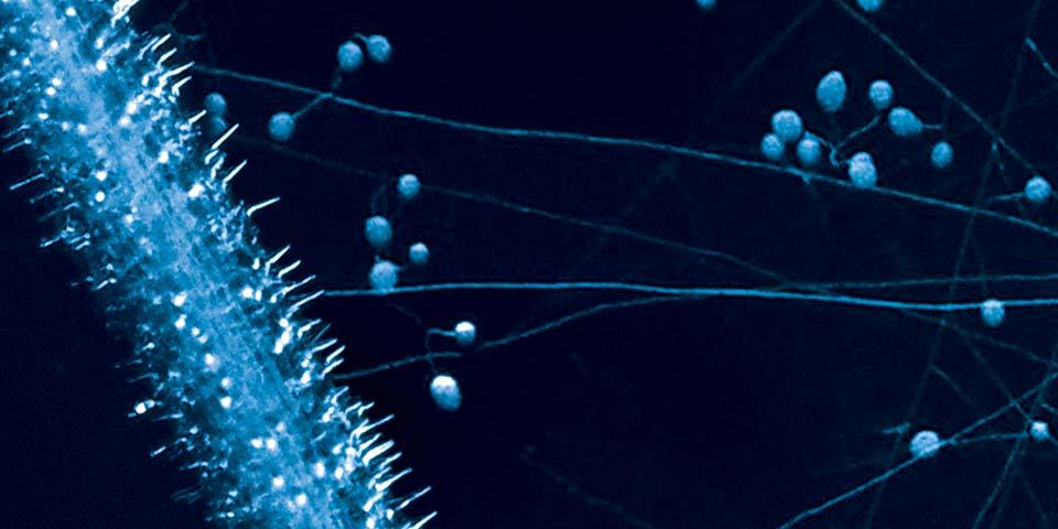 Zone d'absorption des hyphes mycorhiziens