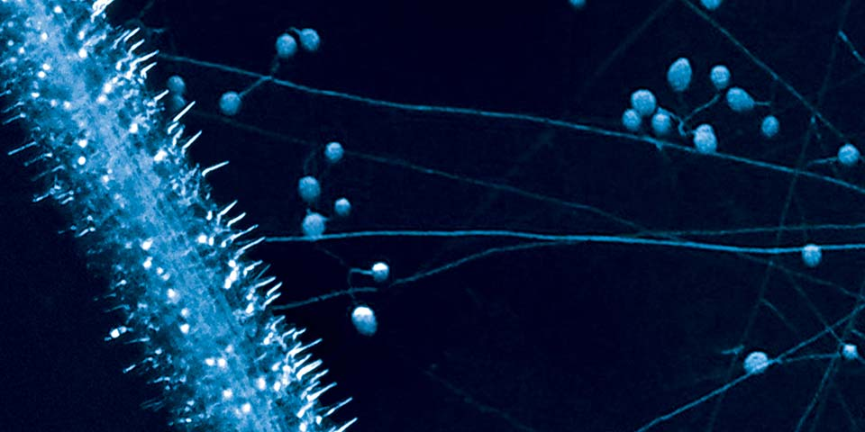 Absorptive area of mycorrhizal hyphae